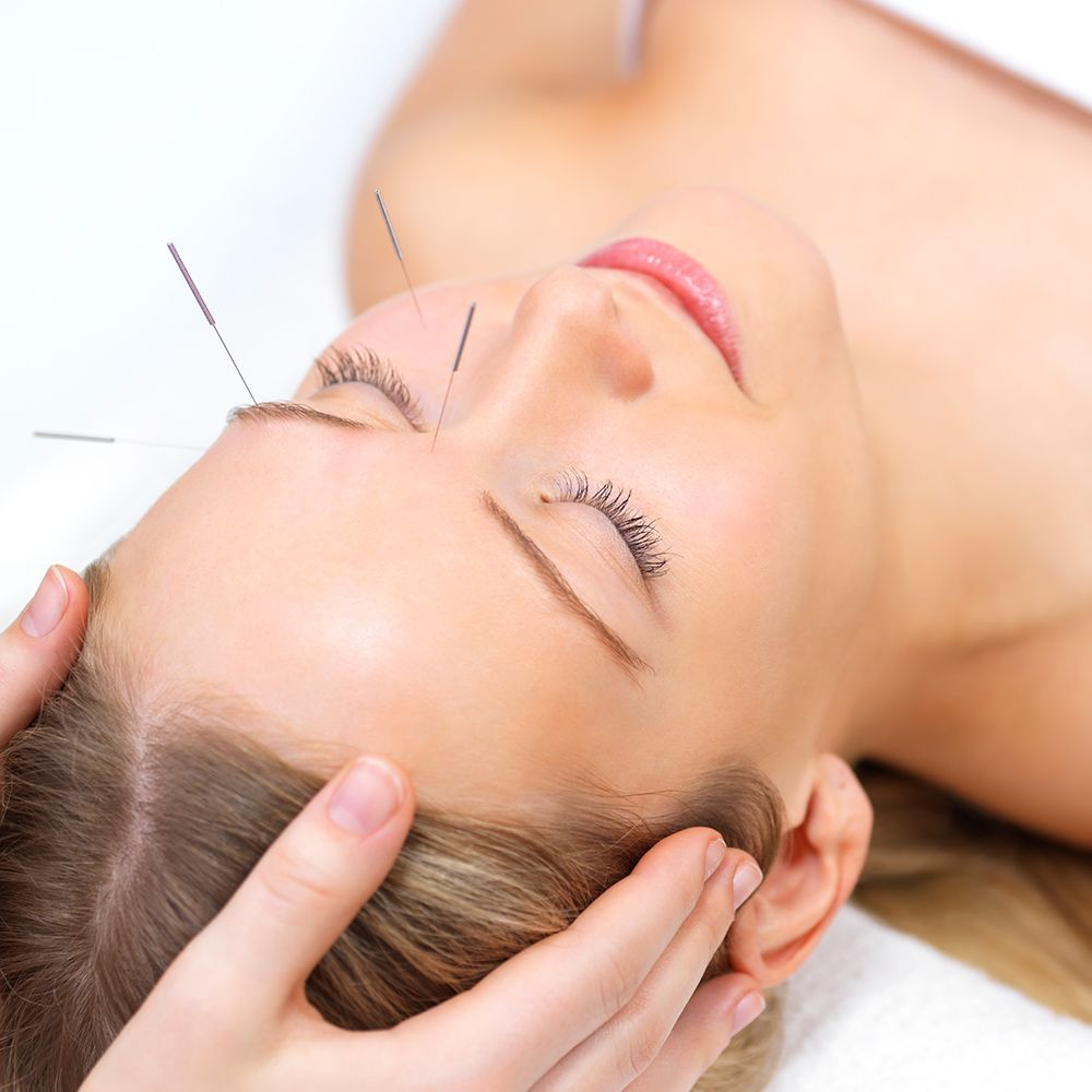 Can Acupuncture Really Reduce Wrinkles? If So, How?