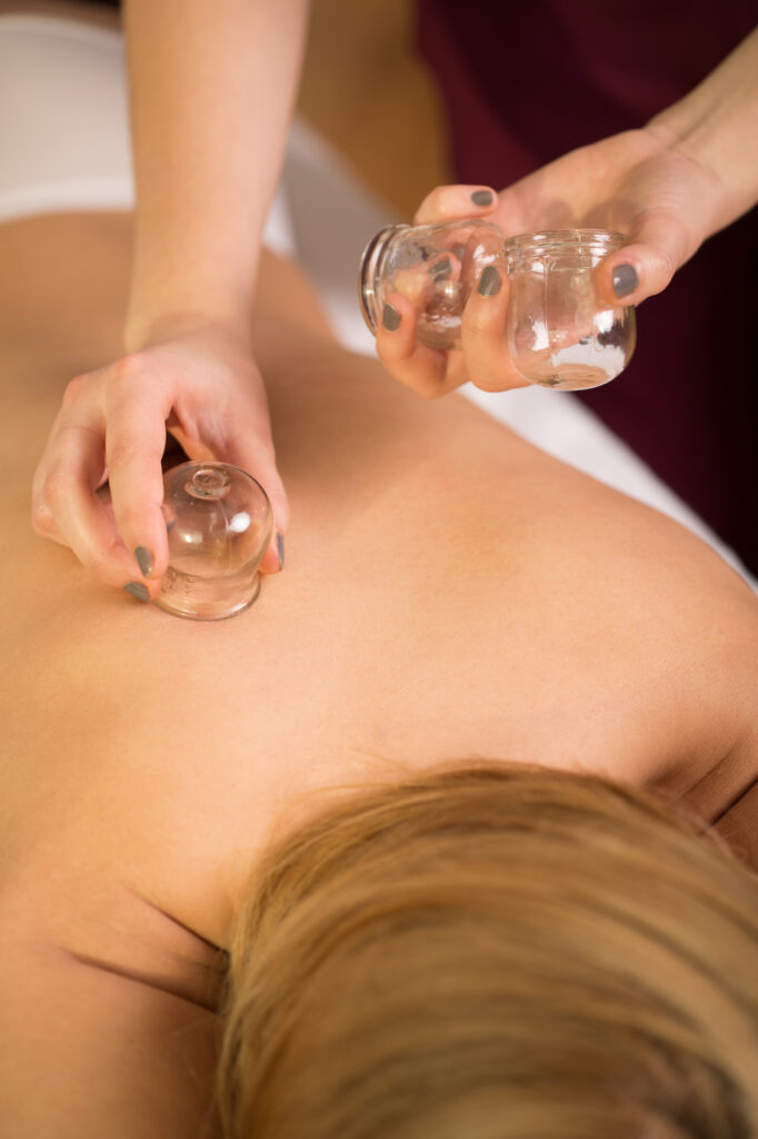 woman relaxing during cupping massage